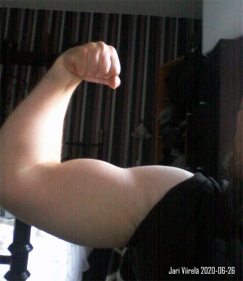 biceps jari viirela